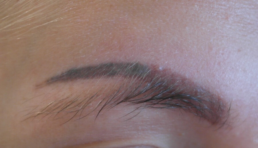 Eyebrow Tattoo Removal Can Eyebrow Tattoos Be Removed By Ideas And Designs