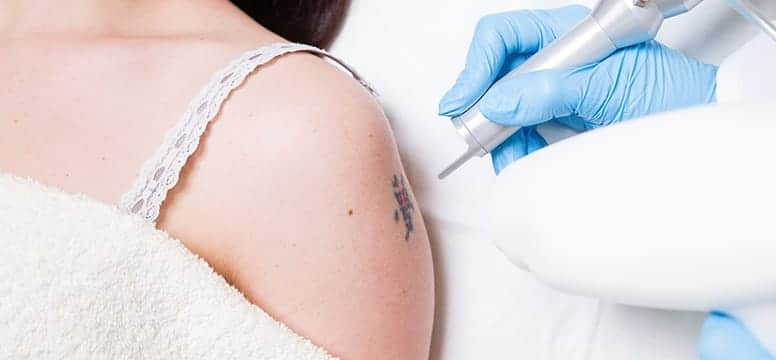 Laser Tattoo Removal Treatment In Florida Rendon Center Ideas And Designs