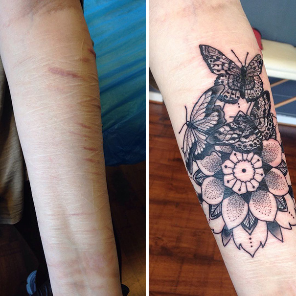 10 Amazing Scar Cover Up Tattoos Part 10 Ideas And Designs