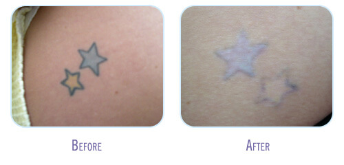 Laser Tattoo Removal Before And After Gallery Bodylase Ideas And Designs