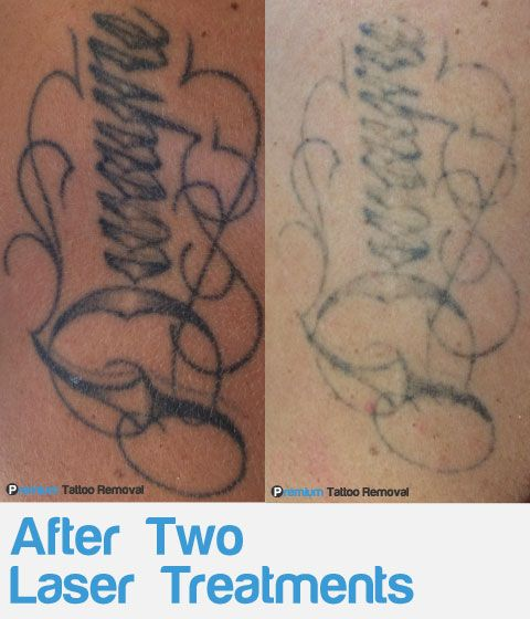 Laser Tattoo Removal Before And After Photos Premium Ideas And Designs