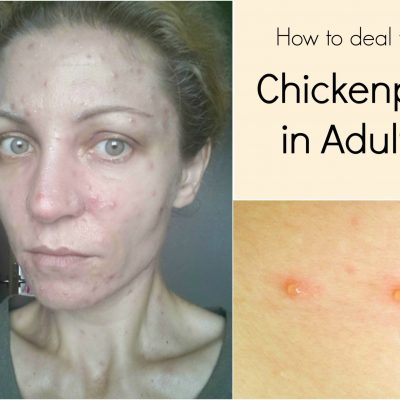 How to deal with chickenpox in adults