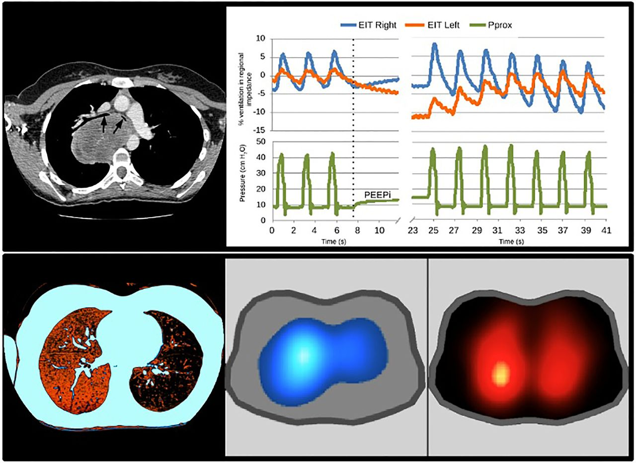 Chest Electrical Impedance Tomography Examination Data