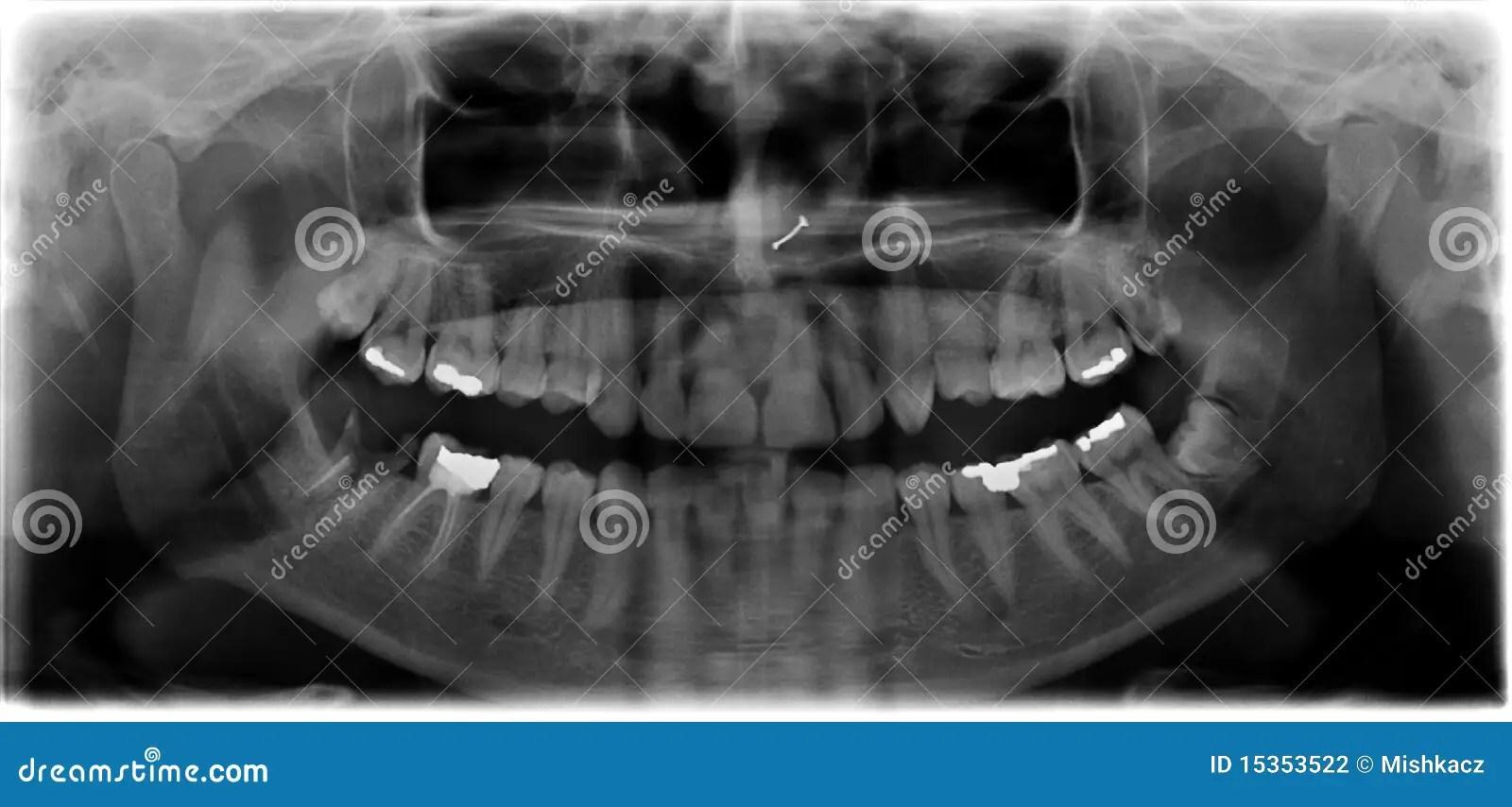 X Panoramic Anatomy Ray