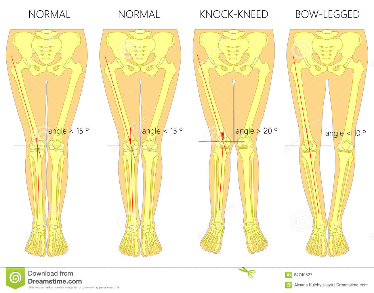 Shapes Of The Legs. Normal And Curved Legs. Knock Knees ...