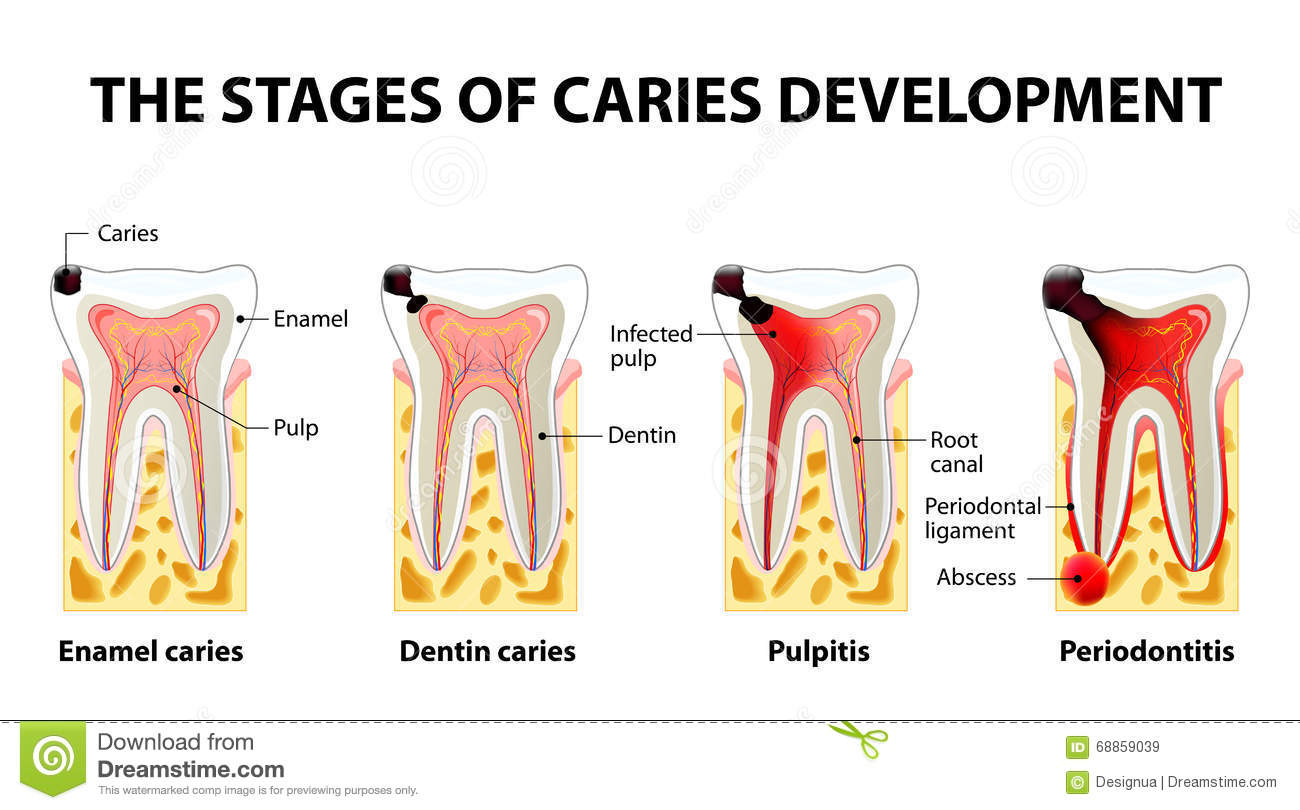 The Stages Of Caries Development Cartoon Vector