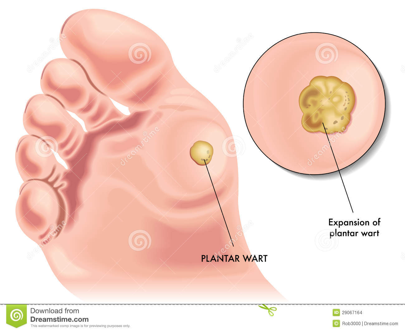 How Do You Remove Plantar Wart