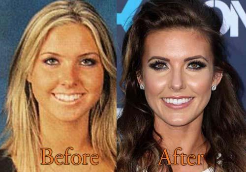 Palin Bristol Surgery Jaw