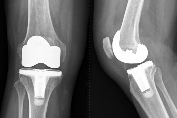 Zimmer Knee Replacement X Ray