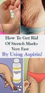 aspirin rid stretch marks easily fast healthylife