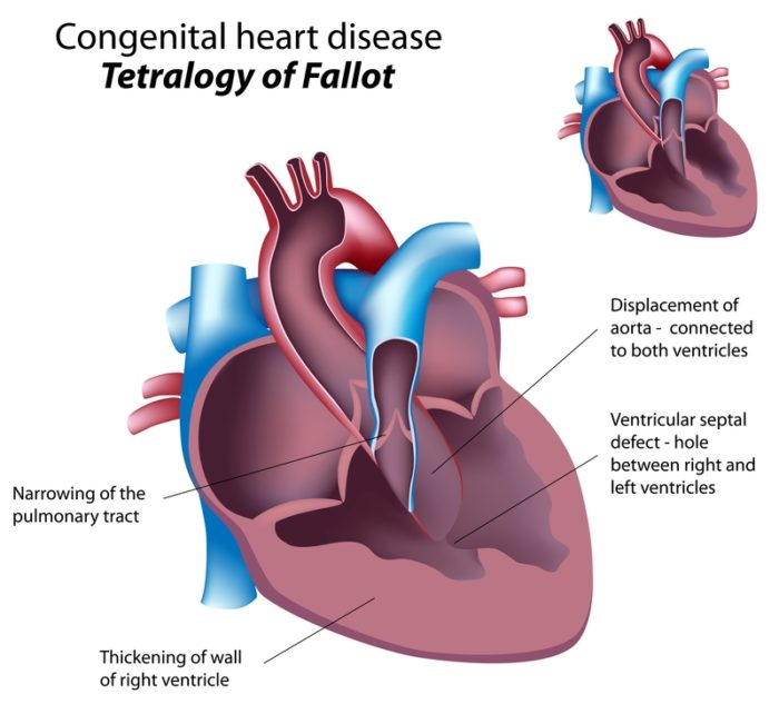 Congenital Heart Disease: How It Can Affect Us in ...