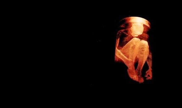 Estas 27 universidades compraron partes de cuerpos de bebés abortados para experimentos