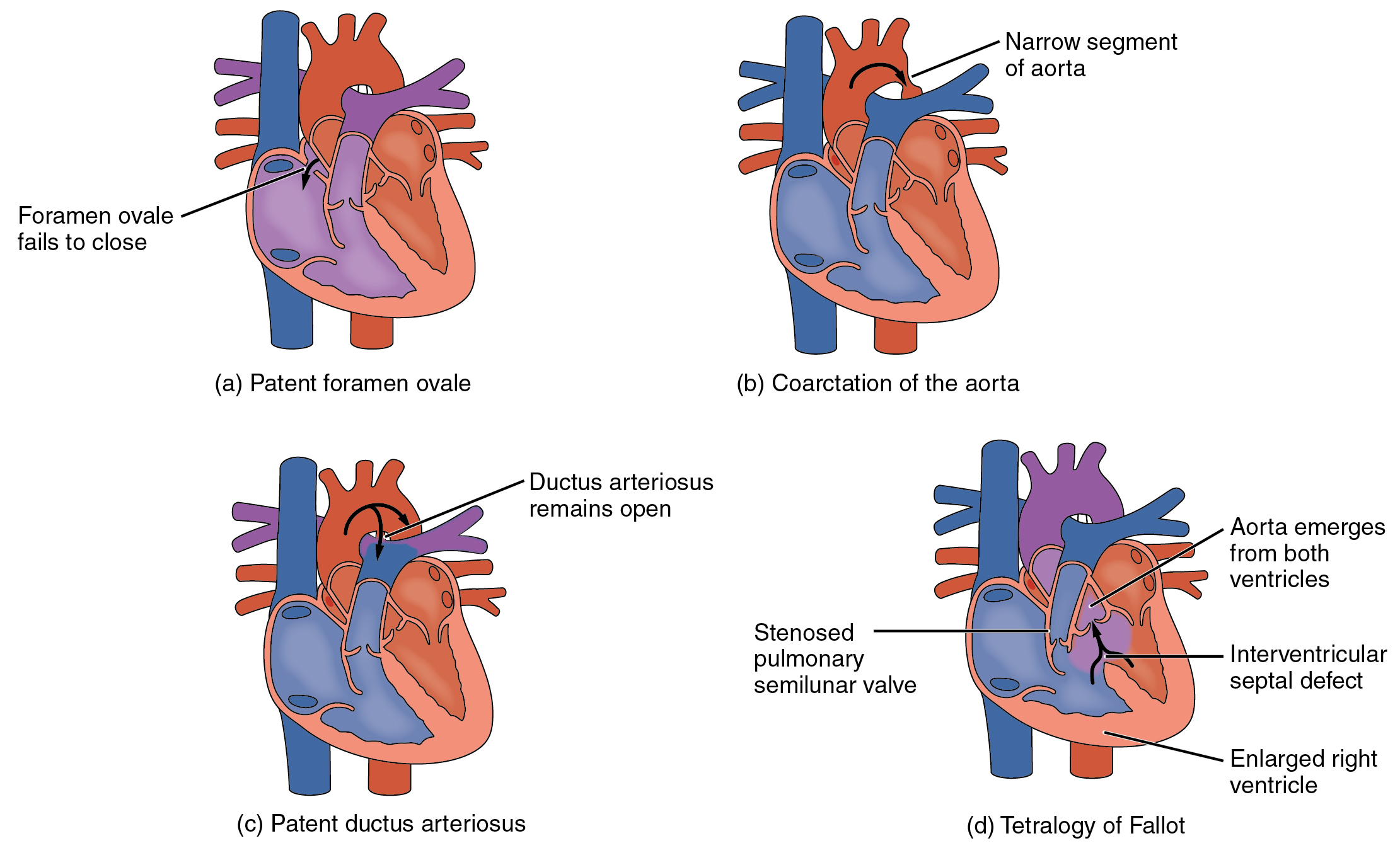 File:2009 Congenital Heart Defects.jpg - Wikimedia Commons