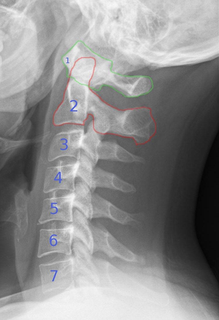 Degeneration Cervical Spine