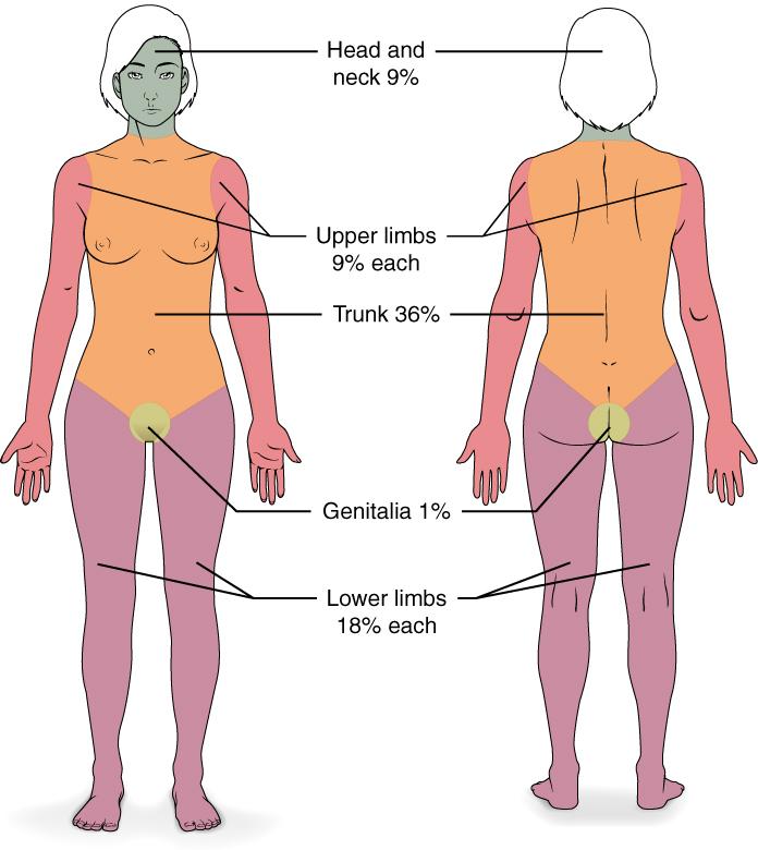 1st Degree Burn Diagram
