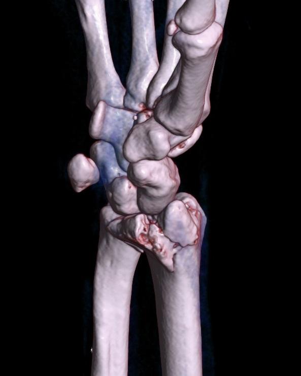 Open Reduction Internal Fixation Patella