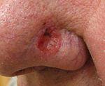 Basal Carcinoma Carcinoma.jpg.