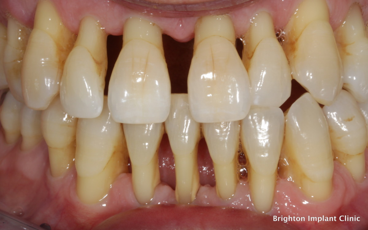 Curing Tooth Decay Amp Periodontal Disease