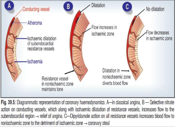Coronary Steal Phenomenon
