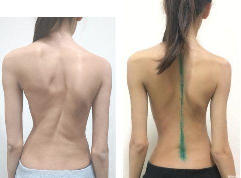 Кривая спина: до и после операции