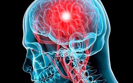 Отек оболочки головного мозга – Веримед