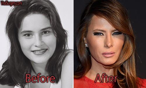 Melania Trump Plastic Surgery, Before and After Facelift ...