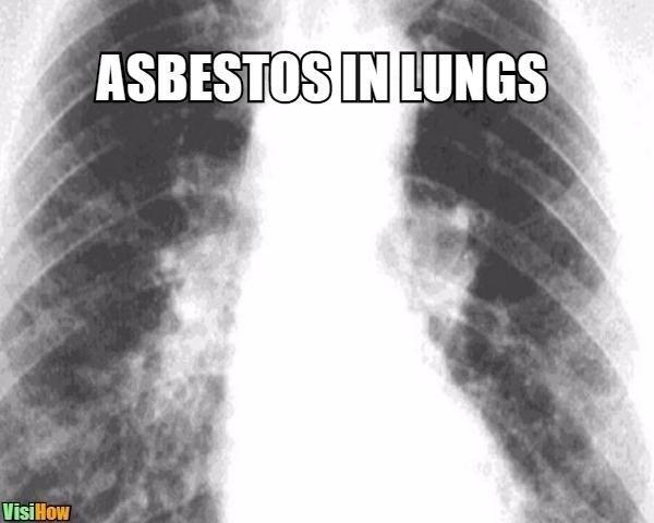 Lung Scarring Asbestos