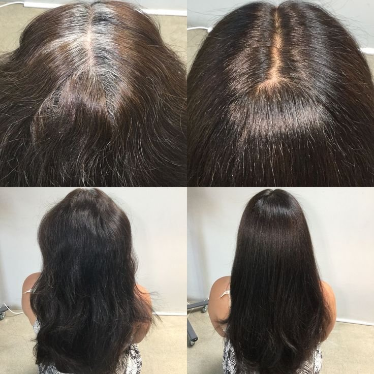 New 50 Best Before Afters Images On Pinterest Hair Color Ideas With Pictures
