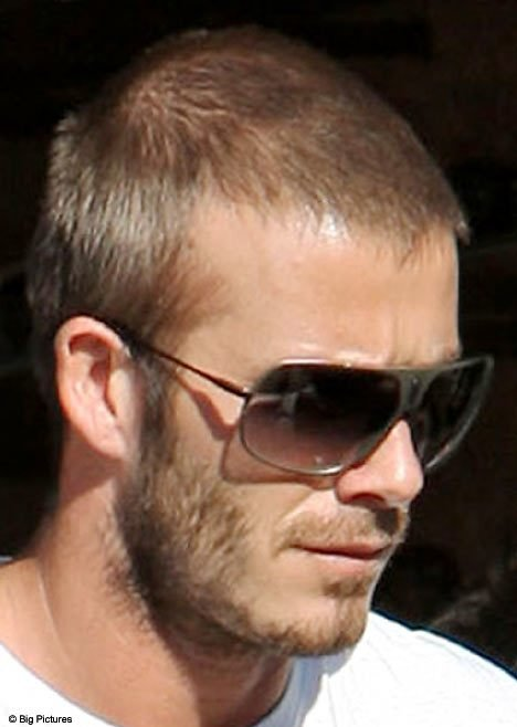New Golden Bald Is Crocked Beckham Losing His Hair Daily Ideas With Pictures