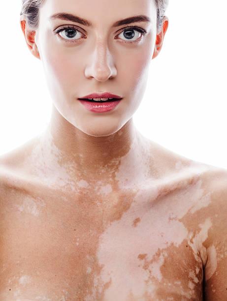 Vitiligo White People Can Get
