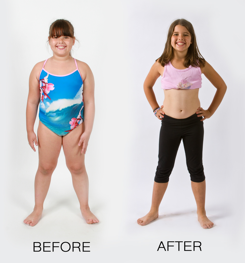 Camp Shane Opens New Youth Weight Loss Camp For Children