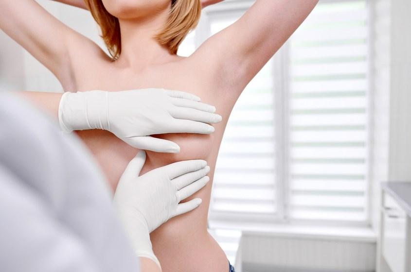 哺乳動物学者による乳房専門医による乳房の検査