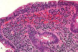 Biopsie du duodénum avec duodénite