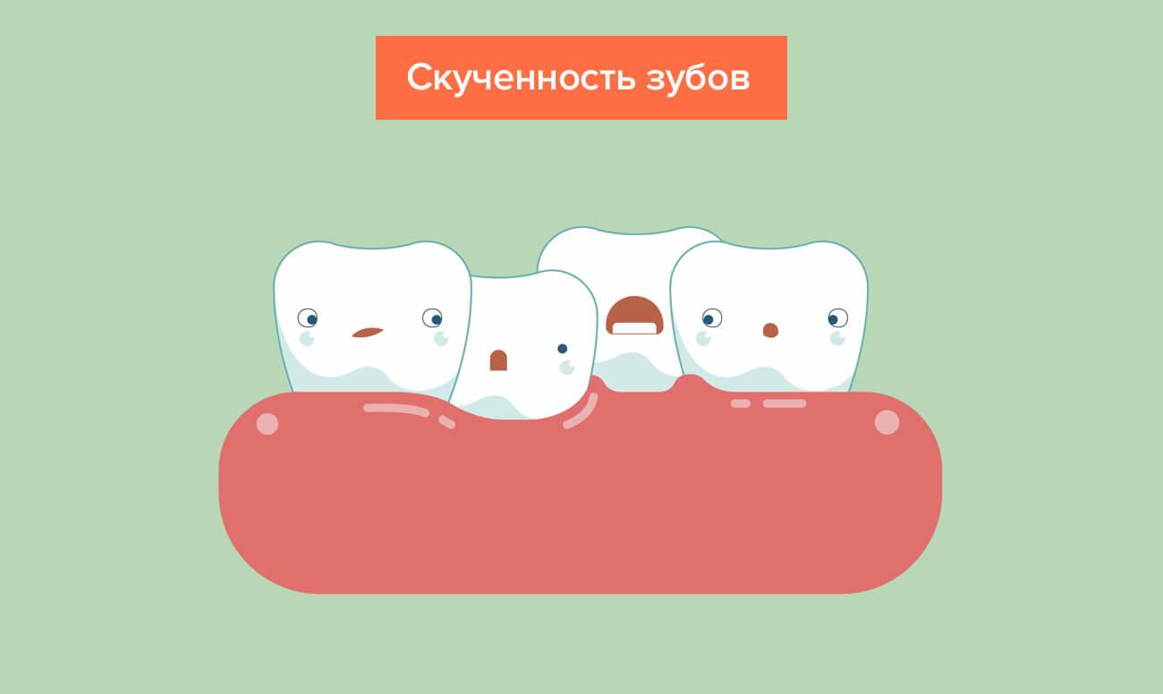 Pembelian gigi dalam gambar
