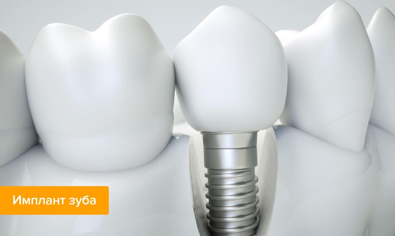 Фото импланта зуба