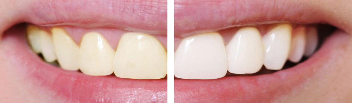 before-and-after-whitening-1-1200x351.jpg