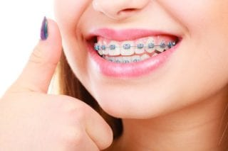 orthodontist in Houston