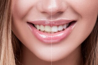 Benefits of Cosmetic Dentistry for long time