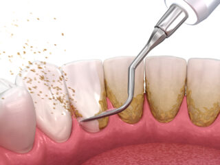 periodontal gum cleaning