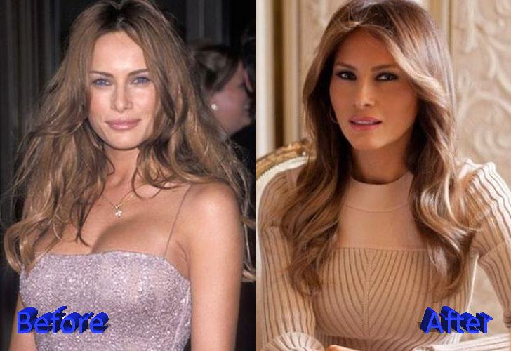 Melania Trump Plastic Surgery: A First Botox Lady?