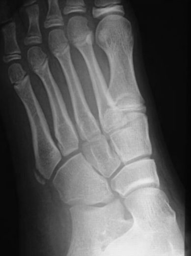 Sclerosis Fracture Fifth Metatarsal
