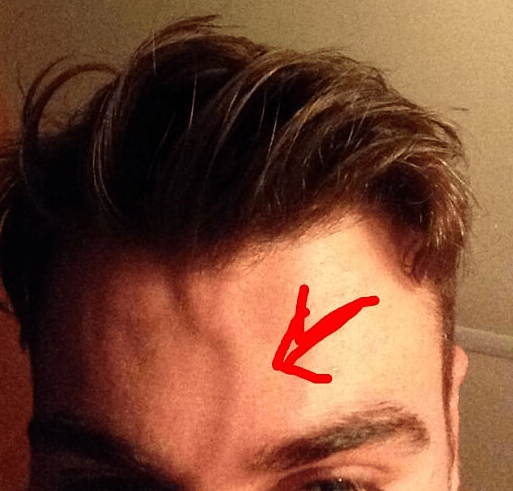 Vein Bulging Forehead Causes