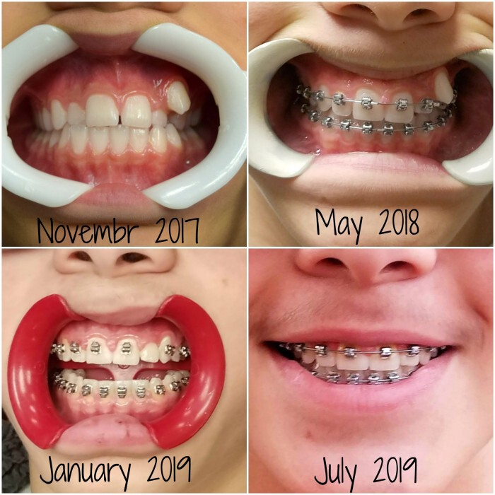 What To Expect Almost Done With Braces A Mom S Take