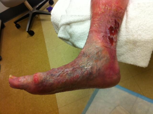Vascular Non Pressure Ulcer