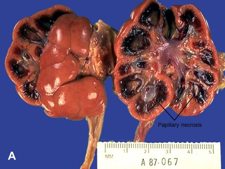 And Disease Kidney Pain Flank