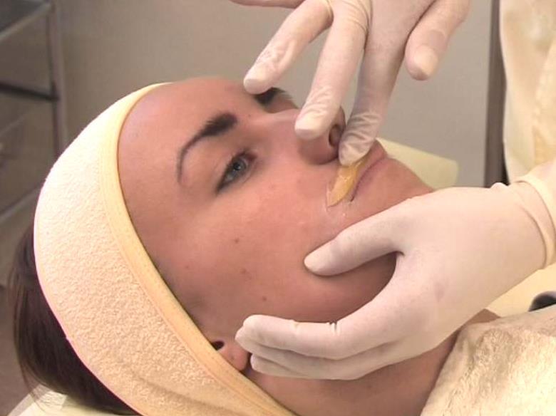 сахарная эпиляция лица и верхней губы
