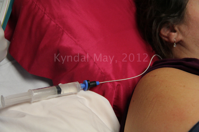 Childbirth Epidural Placement
