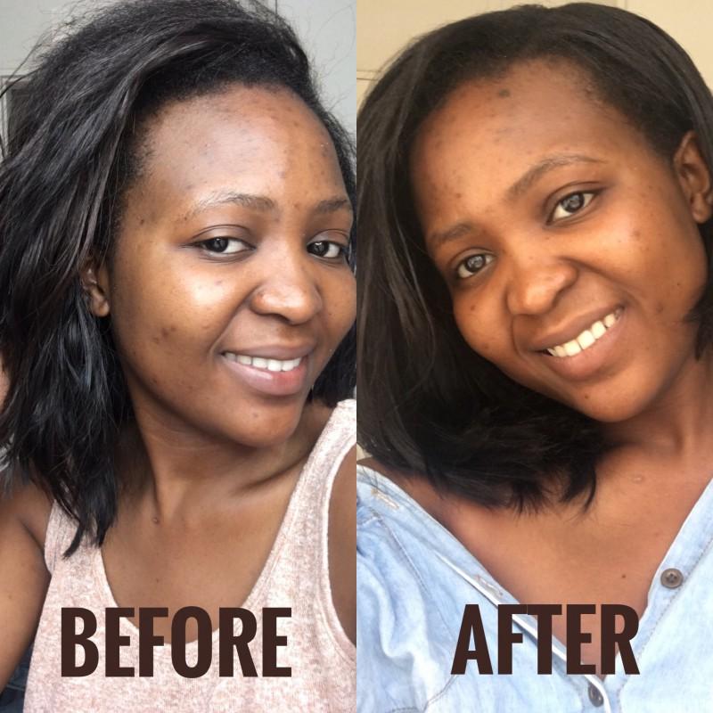 Best Cream Pores Face