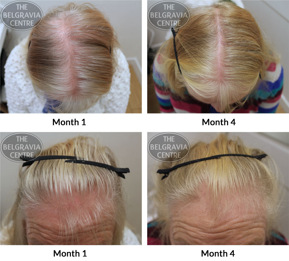 Female Hair Loss 20s