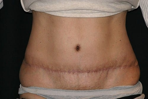 Post Liposuction Treatment
